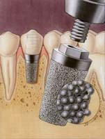 Implantologia - Studio dentistico Mario Vaccarone - Casale Monferrato