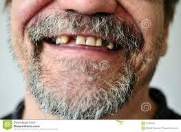 dente in meno